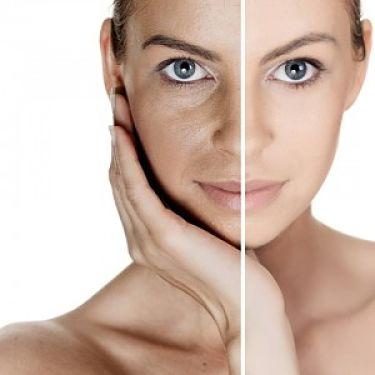 rejuvenecimento del rostro