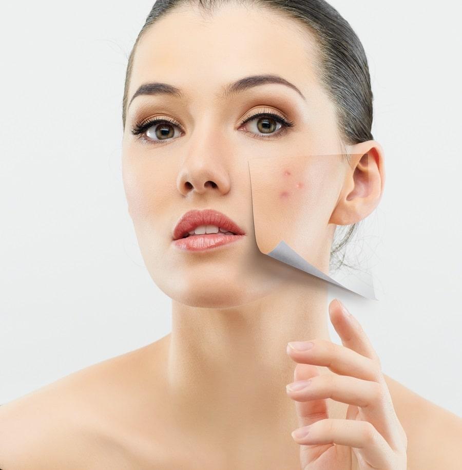 cómo borrar las manchas del acné
