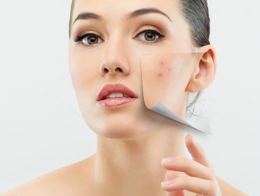 Cómo borrar las manchas del acné con jugo de limón