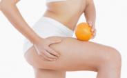 Celulitis dolorosa: Conoce sus causas, tratamiento y como prevenirla