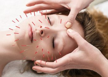 ¿ Para qué sirve la acupuntura ? ¡ Mejore su bienestar emocional!