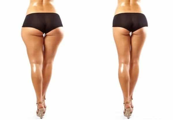 Sencillos tips de cómo adelgazar las piernas en una semana