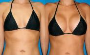 ¿Senos pequeños? ¡Aumento de senos con grasa corporal!